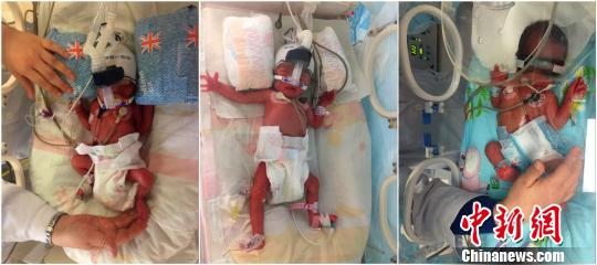 湖北一女子生下儿子6天后又生双胞胎女儿