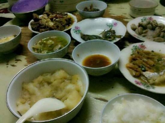 郴州老太常吃剩菜剩饭取出300颗绿豆大结石