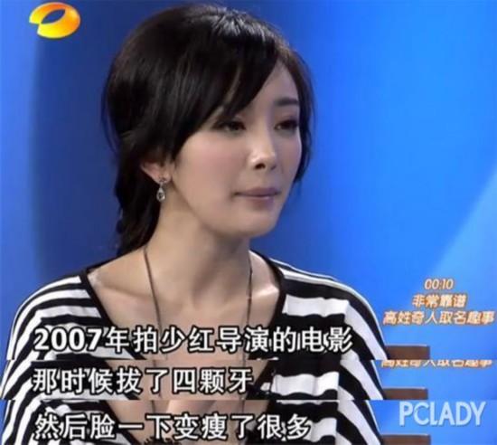 杨幂青涩旧照曝光 变V脸真是因为拔智齿吗?