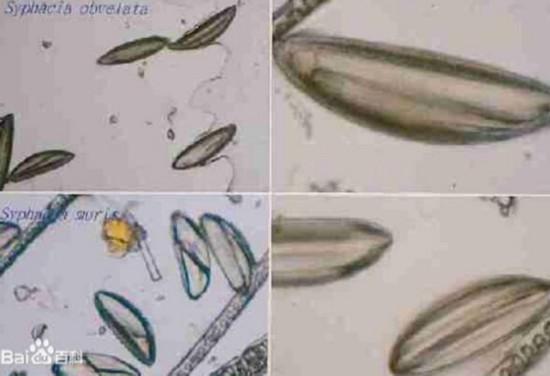 老太眼内8条活虫蠕动 线头状的白色虫子长约3厘米