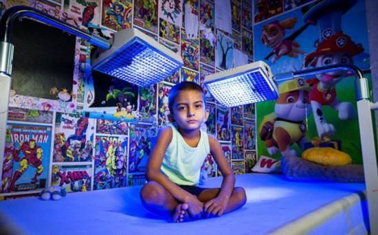 英4岁男童患怪病 每天需蓝光照射20小时