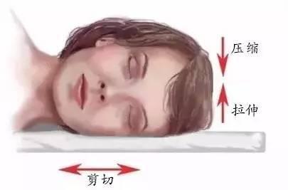 睡觉姿势不正确,也能长皱纹?