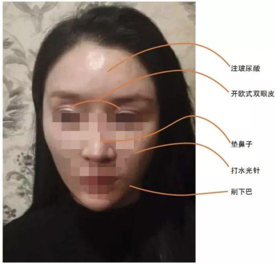 垫鼻子花了两万,削下巴又是两万,开欧式双眼皮一万多,平时又是玻尿酸