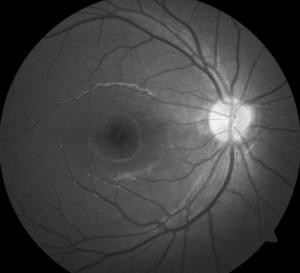 激光照射视力受损提醒:激光使用不当可造成眼底组织损伤