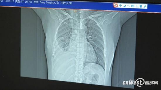 女子6年来饱受肺部感染困扰 原是肺叶进了小辣椒图片