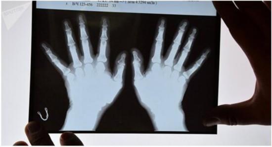 俄罗斯科学家开发出体溶性骨植入物 无副作用