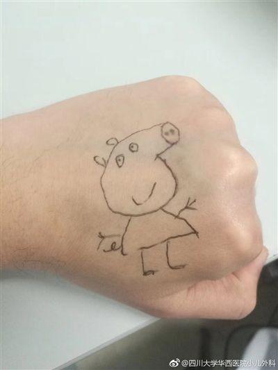 逗小患者开心 儿科医生手背上画小猪佩奇