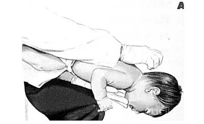 男婴锡纸卡喉 家长倒提救命