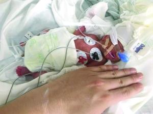"""母亲患妊娠高血压 宿迁""""巴掌女婴""""出生仅800克"""