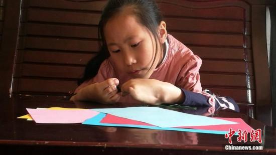 """9岁患疾小女孩笑对人生""""脚怀绝技""""上演必赢亚洲登录"""