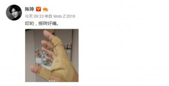 陈坤晒出手掌受伤照片 或将出演徐浩峰执导新片《诗眼倦天涯》