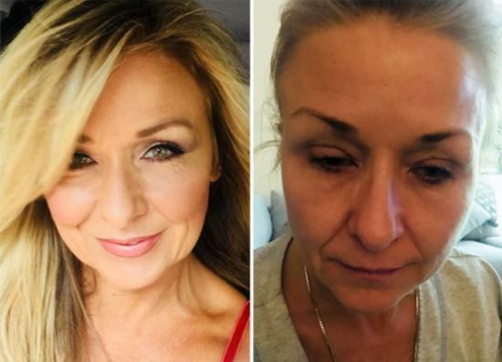 妇女化妆25年从不卸妆 毒素堆积险致双目失明(图)