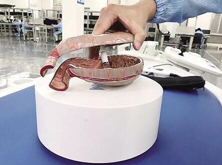 """吞颗""""胶囊""""就可胃镜检查 胶囊胃镜机器人亮相"""