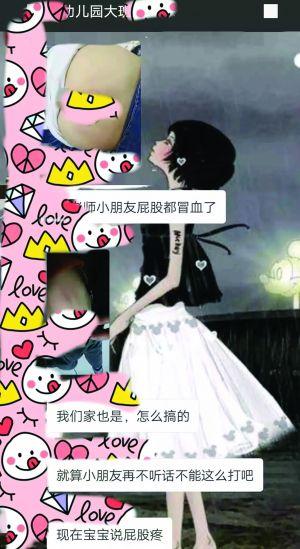泰州靖江15名幼儿没午睡 屁股被老师打出血