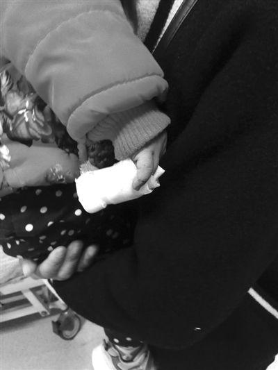 小女孩受伤的手指