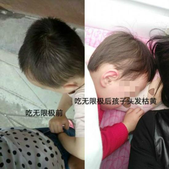 无限极产品疑致3岁女童心肝受损母亲拒60万元赔偿古惑女之狱凤