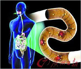 科学家发现肠道菌群中新型的抗生素耐药基因