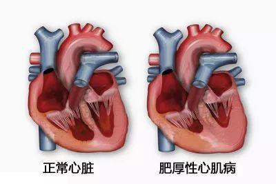 年輕人猝死多因這種心臟病!醫生提醒:一人發病全家篩查
