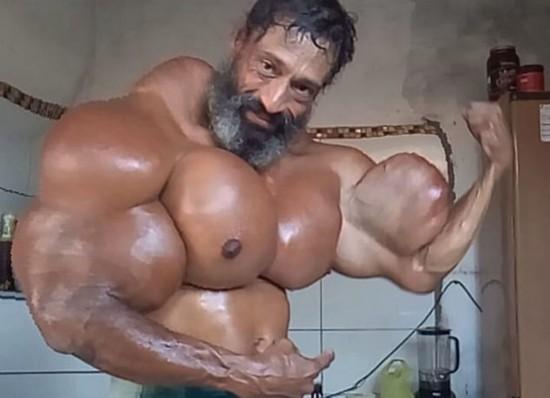 巴西健美运动员为追求极端身材注射合成醇增肌