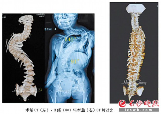 术前CT(左),X线(中)与术后(右)CT片对比。资料图片