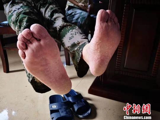 浙江台州抗台救灾侧记:一辆车一双脚一群人