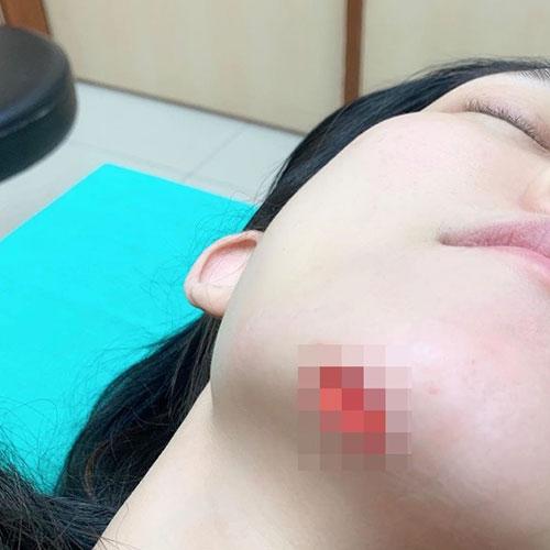 范玮琪受伤下巴缝15针(组图)