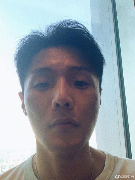 李荣浩解释嘴上异状凸起原因:十几年前车祸留疤所致