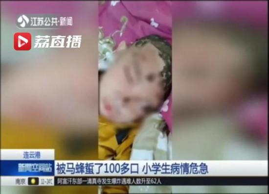 連雲港一小學生被馬蜂蜇了100多口 病情危急