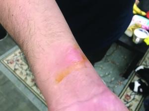 小米爆款电水壶烫伤南京市民商家称个人失误