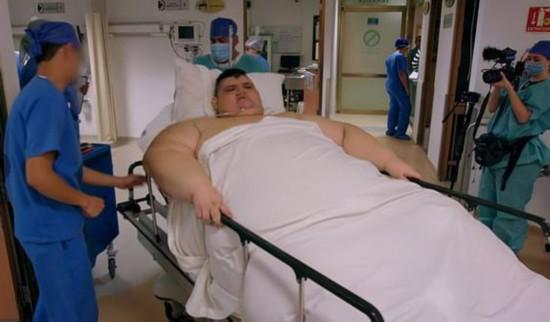 世界最胖的人3年減660斤網友:勵志!也真胖!