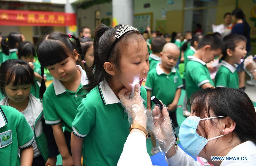 Dental care activity held in kindergarten in Hefei, E China's Anhui