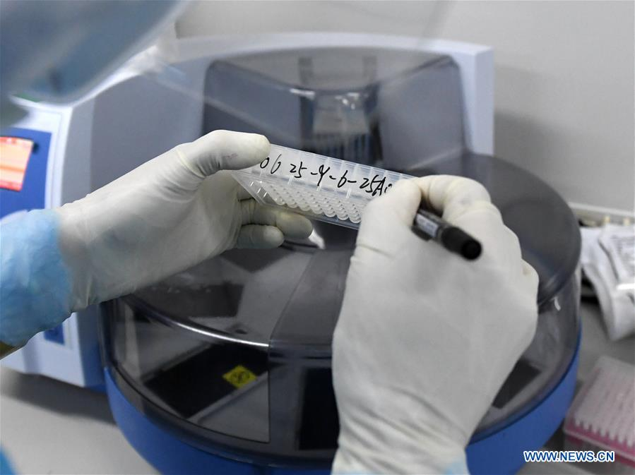 CHINA-BEIJING-COVID-19-NUCLEIC ACID TEST (CN)