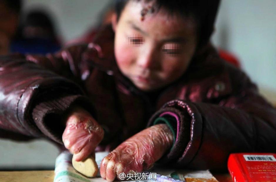 男孩身患罕见病皮肤一碰就破 用卫生纸包裹8年