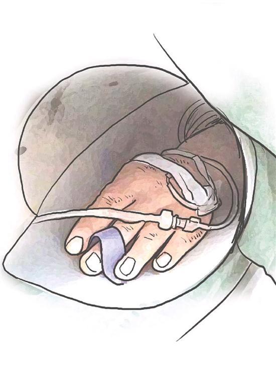 """浙江一护士发明28件看病""""神器"""" 欲申请专利"""