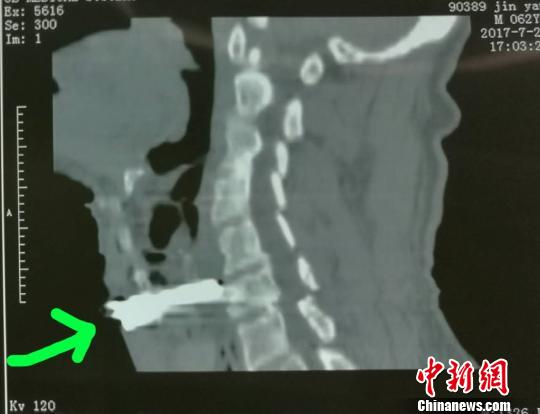 山西男子被砂轮直插咽喉伤口距颈动脉仅几毫米